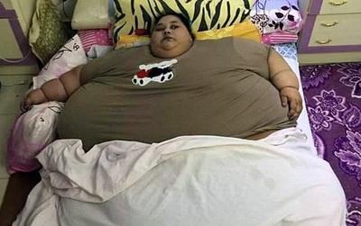 Nặng nửa tấn, người phụ nữ nằm bất động trên giường suốt 25 năm nay