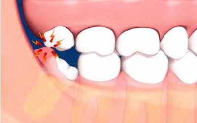 Không chỉ mọc lệch, răng khôn hóa ra còn... ngu hơn những gì bạn vẫn tưởng