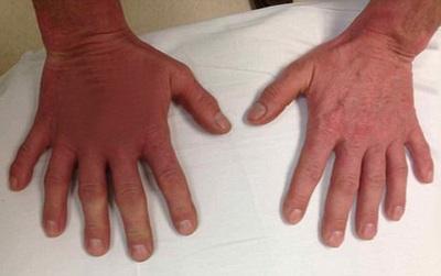 Người đàn ông có đôi bàn tay kỳ lạ nhưng nhiều người vẫn không biết lạ ở chỗ nào