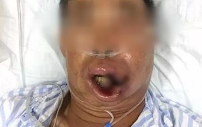 Người đàn ông suýt tử vong vì tự ý nặn mụn to ở môi