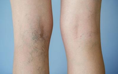 Bệnh suy giãn tĩnh mạch chân rất phổ biến và đây là cách phòng chống bệnh hiệu quả
