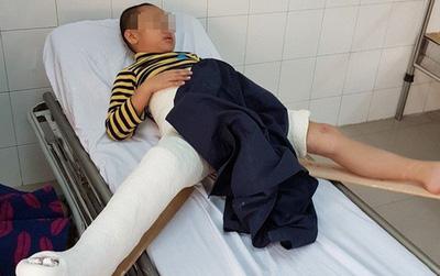Cách chức hiệu trưởng và hiệu phó trường tiểu học Nam Trung Yên sau vụ học sinh gãy chân tại trường