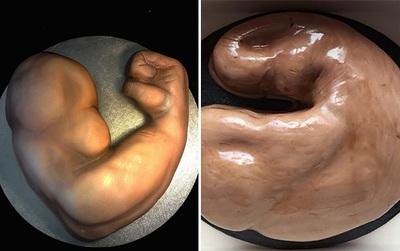Đặt bánh gato hình bắp tay trên mạng, kết quả nhận được là chiếc bánh hình bộ lòng