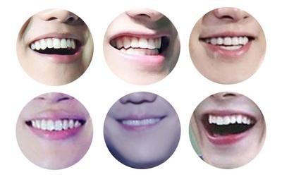 Nếu mê trai đẹp K-pop, chỉ nhìn qua nụ cười cũng biết là thần tượng nào