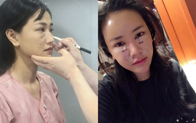 Maya tự tin khoe ảnh khuôn mặt vừa phẫu thuật thẩm mỹ tại Hàn Quốc
