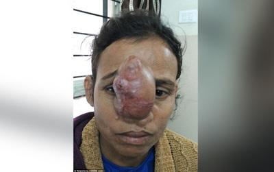 Người phụ nữ không thể hôn chồng vì khối u vướng víu trên mũi