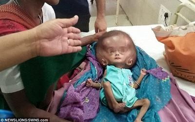 Em bé đáng thương trông giống người ngoài hành tinh với chiếc đầu phình to