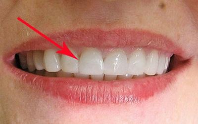 3 trường hợp nhất định không được niềng răng
