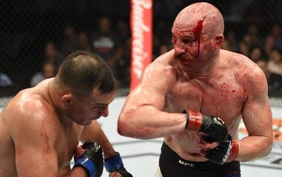 "Võ sĩ MMA khoe gương mặt ""nát bét"" sau trận huyết chiến"