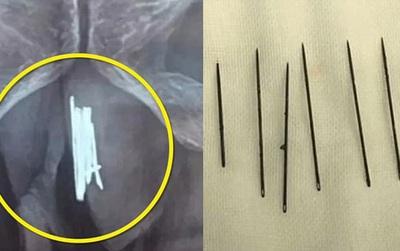 Trung Quốc: Nhét 15 kim khâu vào vùng kín để thỏa mãn, người đàn ông phải nhập viện trong tình trạng nguy kịch