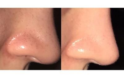 Cô nàng này đã gây kinh ngạc khi trị sạch bong kin kít mụn đầu đen và đây là 3 sản phẩm cô sử dụng