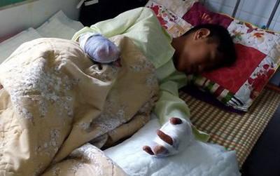 Một thiếu niên mất hai bàn tay vì pháo nổ