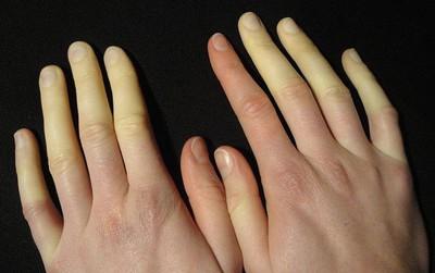 Mùa lạnh rất dễ bị đau đầu ngón tay bởi các nguyên nhân dưới đây