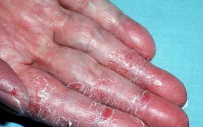 Hỏi khó: 500 triệu tế bào da đào thải mỗi ngày nhưng vì sao máu, chất dịch cơ thể không rò rỉ qua da?