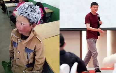 """Câu chuyện cậu bé """"đầu băng"""" lay động cả tỷ phú Jack Ma, thôi thúc ông làm nhiều hơn cho trẻ em Trung Quốc"""