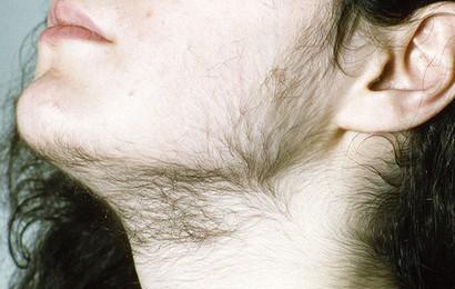 Nhiều mụn, nhiều ria mép hay rối loạn kinh nguyệt ở nữ giới có thể là do thừa testosterone (hormone nam)