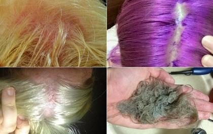Kết quả hình ảnh cho tai nạn tẩy tóc