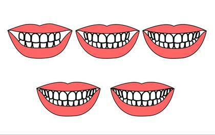 """Xem số lượng """"Răng"""" để biết mình giàu hay nghèo"""