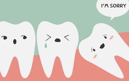 Tìm hiểu các triệu chứng khi mọc răng khôn để có cách đối phó tốt hơn