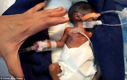 Em bé hạt tiêu chỉ nhỏ bằng bàn tay nặng chưa tới 0,5kg