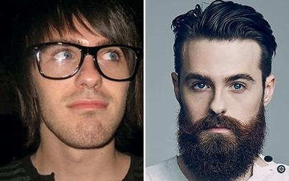 15 anh chàng dậy thì thành công sau khi quyết định để râu