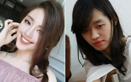 Khánh Linh The Face bị dân mạng tung loạt ảnh được cho là nhan sắc thời chưa phẫu thuật