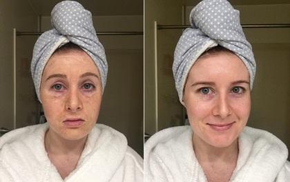 """Thử loại mặt nạ """"lão hóa"""", cô gái này không ngờ da mình sẽ chuyển biến như vậy"""