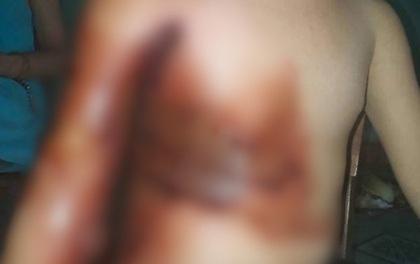 Nghịch dại, bé 5 tuổi bỏng nặng, mẹ thiếu tiền đành cho con xuất viện sớm để dùng thuốc nam khiến con bị hoại tử