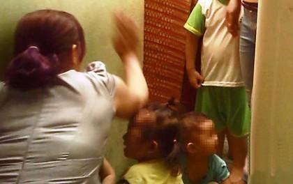 Bé 3 tuổi nghi bị cô giáo đánh bầm mắt ở Sài Gòn