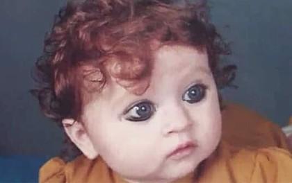 """Sinh ra bị coi là """"quái vật"""" vì ngoại hình khác thường, 20 năm sau ai cũng phải trầm trồ vì sắc đẹp của cô"""