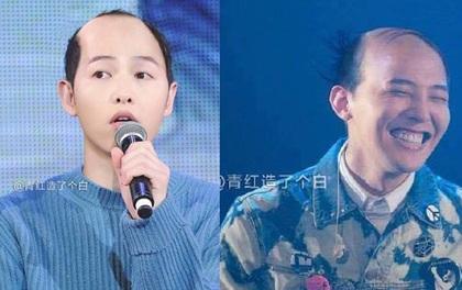 Photoshop đã chứng minh: mỹ nam đẹp đến mấy mà bị hói đầu thì cũng không thể yêu thương nổi