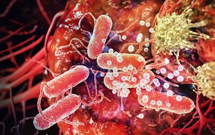 Khoa học chế ra virus giết chết tế bào ung thư! Phải chăng đây là bước ngoặt lớn của nhân loại?