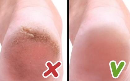 10 bí quyết đơn giản giúp bạn có được đôi chân gót sen