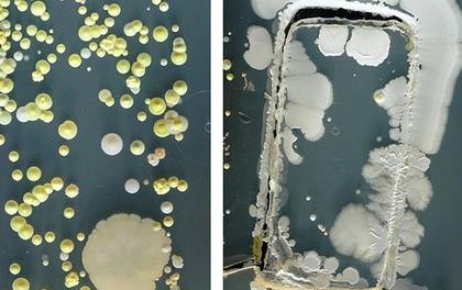 Bức hình cho thấy điện thoại bạn bẩn như thế nào và tần suất vệ sinh vật dụng bạn vẫn dùng hàng ngày
