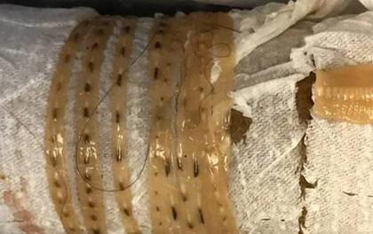 Ăn sushi triền miên tháng ngày, người đàn ông tá hỏa khi phát hiện con sán dây dài 167cm trong bụng