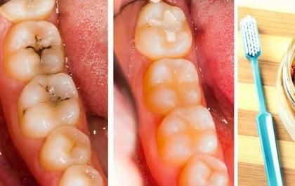 Muốn răng trắng tinh mà không phải ra nha khoa thẩm mỹ, hãy làm theo công thức này