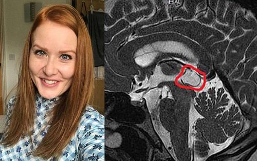 Cô gái người Anh bị u não suốt 9 năm mà không hề hay biết chỉ vì gặp phải triệu chứng mà bất kỳ ai cũng cho là vô hại