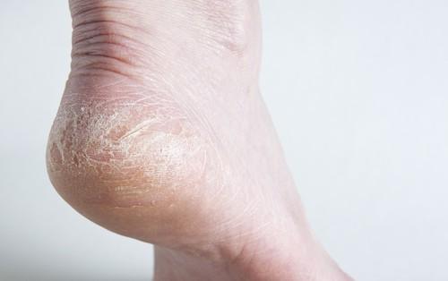 Thấy gót chân bị nứt nẻ nghiêm trọng có thể là do những nguyên nhân sau đây gây ra