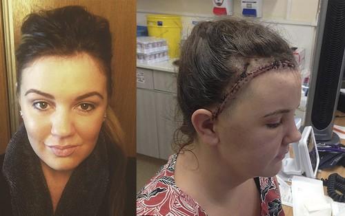 Cô gái 24 tuổi không biết mình bị u não vì những dấu hiệu tưởng chừng như vô hại