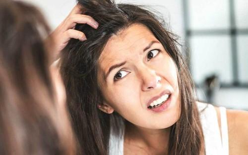 Cẩn thận kẻo đầu đầy gàu chỉ vì chính những việc mà bạn làm hàng ngày