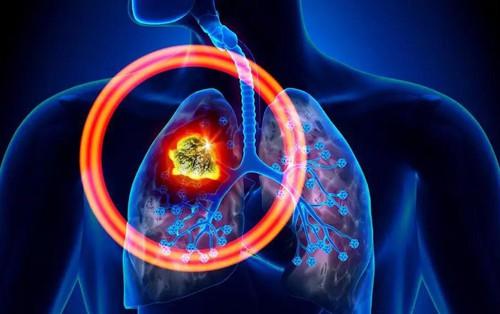 Đây là 6 căn bệnh ung thư gây tử vong hàng đầu thế giới nhưng nhiều người lại chưa nắm rõ