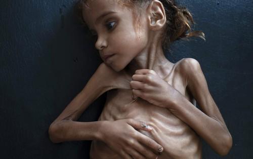 Bé gái 7 tuổi trong bức ảnh gây chấn động thế giới về nạn đói ở Yemen đã chết vì suy dinh dưỡng