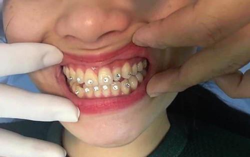 """Xu hướng """"đính đá trên răng"""": lợi đâu chưa thấy chỉ thấy một loạt tai hại"""