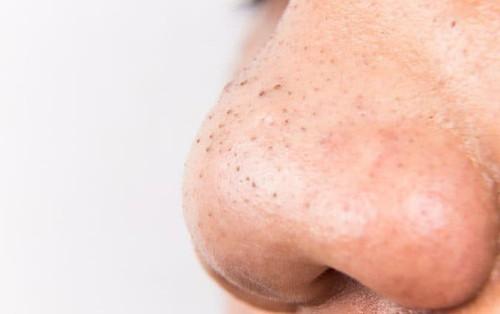 Thay đổi thói quen chăm sóc da để ngăn ngừa mụn đầu đen