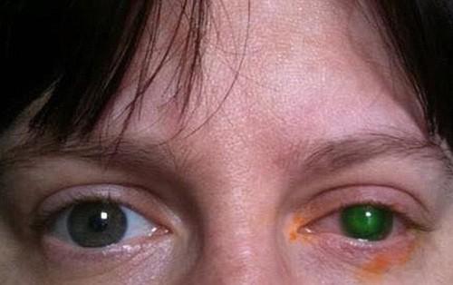 Người phụ nữ 39 tuổi suýt bị mù mắt chỉ vì đi bơi quên bỏ kính áp tròng ra khỏi mắt