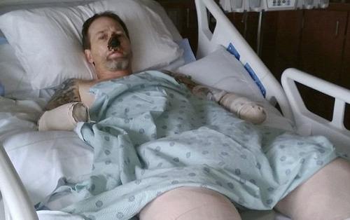 Bất cứ ai cũng sẽ phát hoảng khi biết nguyên nhân sâu xa khiến người đàn ông này bị cắt cụt tứ chi và mũi