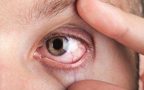 Mắt đột nhiên đỏ ngầu có thể là do 4 nguyên nhân sức khỏe mà bạn không ngờ đến
