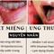 Cẩn thận với các nốt nhiệt miệng bởi có thể đó chính là ung thư lưỡi