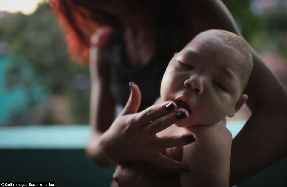Chùm ảnh: Dịch bệnh Zika đầu nhỏ - nỗi khiếp sợ của toàn thế giới - Ảnh 1.