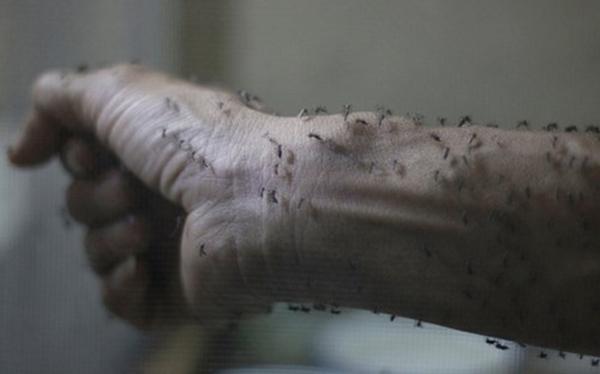 Chùm ảnh: Dịch bệnh Zika đầu nhỏ - nỗi khiếp sợ của toàn thế giới - Ảnh 7.